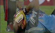 Marcos-Diaz-toma-cabeza-lesion_OLEIMA20150224_0206_14